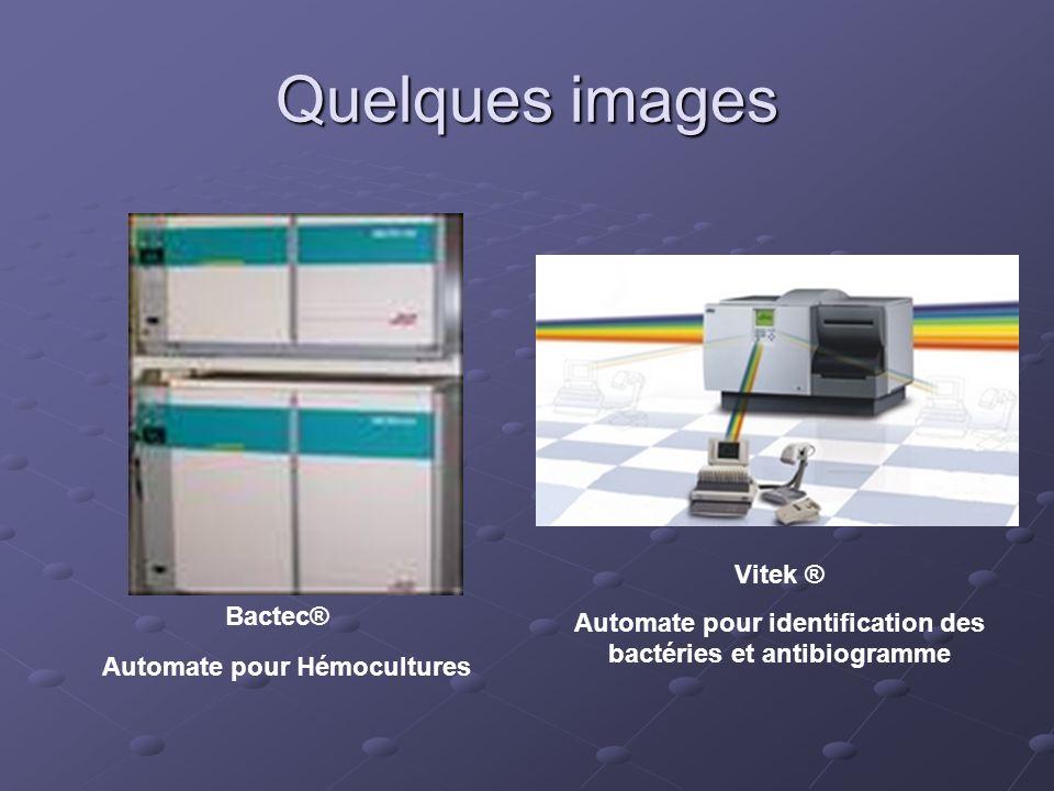 Quelques images Automate pour Hémocultures Bactec® Vitek ® Automate pour identification des bactéries et antibiogramme