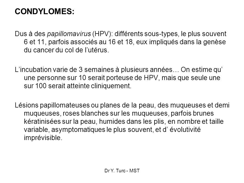 Dr Y. Turc - MST CONDYLOMES: Dus à des papillomavirus (HPV): différents sous-types, le plus souvent 6 et 11, parfois associés au 16 et 18, eux impliqu