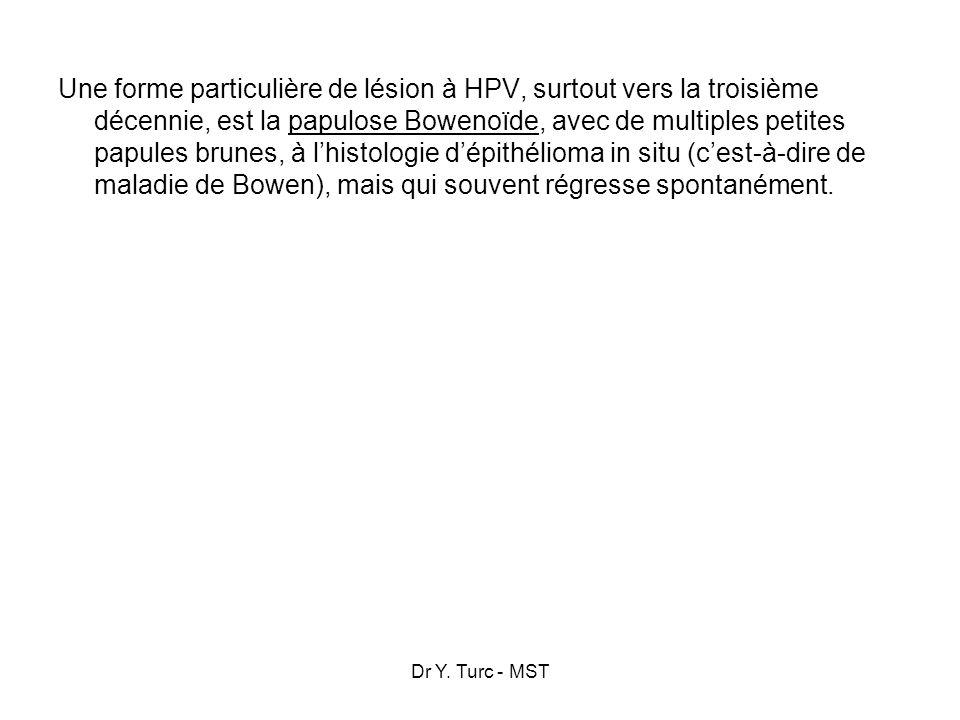 Dr Y. Turc - MST Une forme particulière de lésion à HPV, surtout vers la troisième décennie, est la papulose Bowenoïde, avec de multiples petites papu