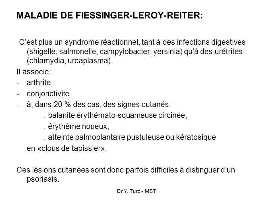 Dr Y. Turc - MST MALADIE DE FIESSINGER-LEROY-REITER: Cest plus un syndrome réactionnel, tant à des infections digestives (shigelle, salmonelle, campyl