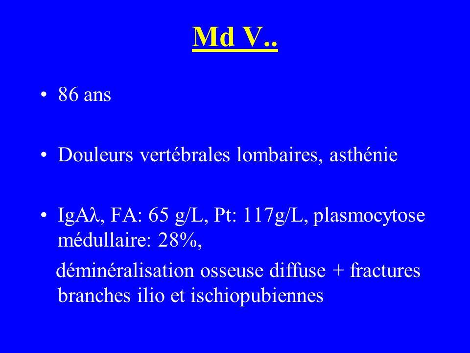 Md V.. 86 ans Douleurs vertébrales lombaires, asthénie IgAλ, FA: 65 g/L, Pt: 117g/L, plasmocytose médullaire: 28%, déminéralisation osseuse diffuse +