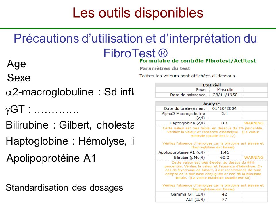 Sexe Bilirubine : Gilbert, cholestase, Médicaments 2-macroglobuline : Sd inflammatoire Age GT : …………. Haptoglobine : Hémolyse, inflammation, medicamen