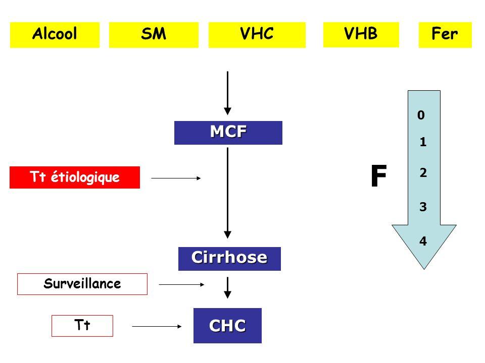 CHC Cirrhose AlcoolVHCVHB MCF SMFer 1 0 2 3 4 F Tt étiologique Surveillance Tt