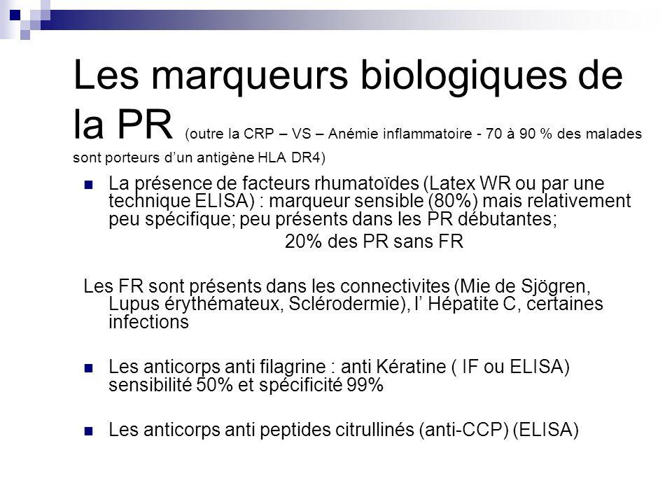 Les marqueurs biologiques de la PR (outre la CRP – VS – Anémie inflammatoire - 70 à 90 % des malades sont porteurs dun antigène HLA DR4) La présence d