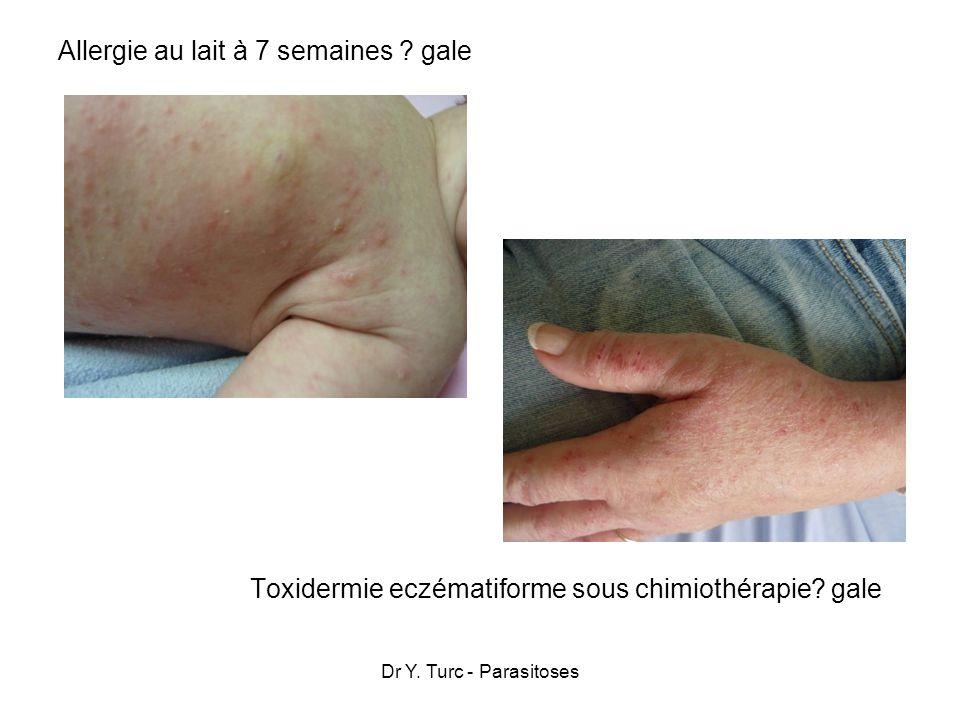 Dr Y. Turc - Parasitoses Allergie au lait à 7 semaines ? gale Toxidermie eczématiforme sous chimiothérapie? gale