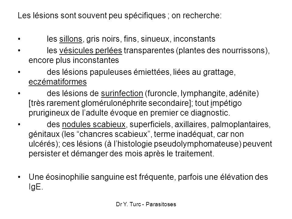 Dr Y. Turc - Parasitoses Les lésions sont souvent peu spécifiques ; on recherche: les sillons, gris noirs, fins, sinueux, inconstants les vésicules pe