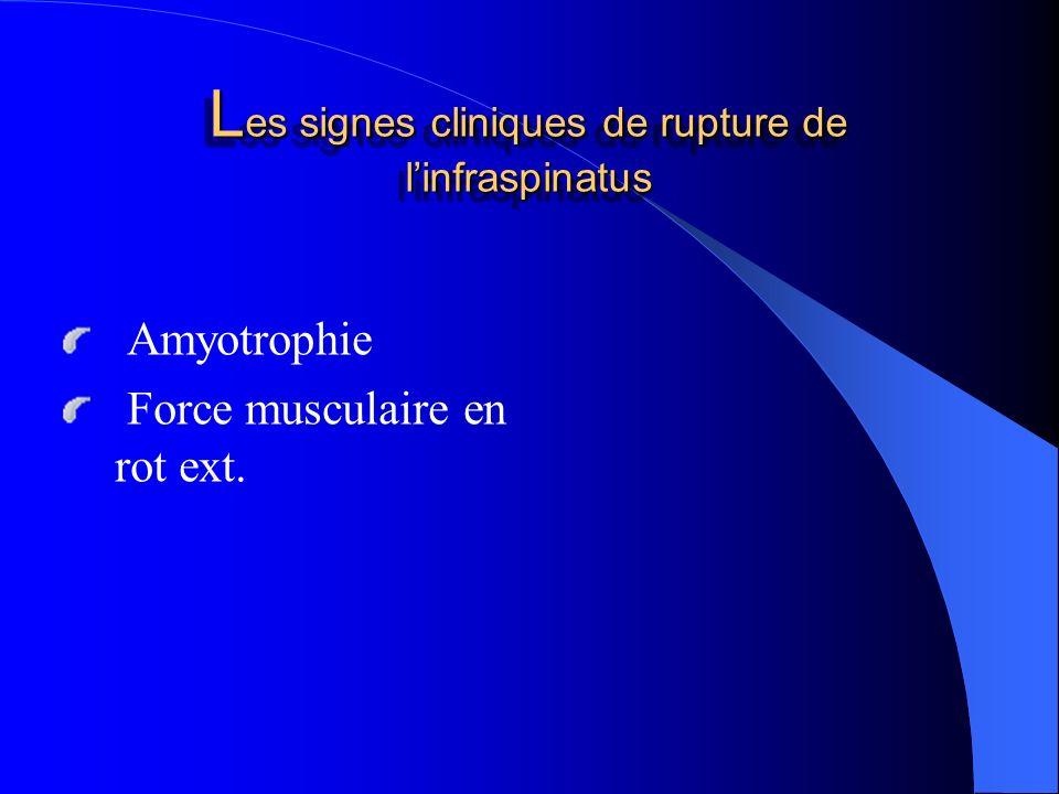 L es signes cliniques de rupture de linfraspinatus Amyotrophie Force musculaire en rot ext.