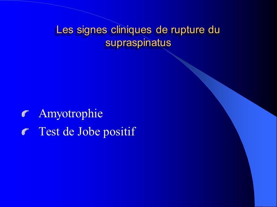 Les signes cliniques de rupture du supraspinatus Amyotrophie Test de Jobe positif