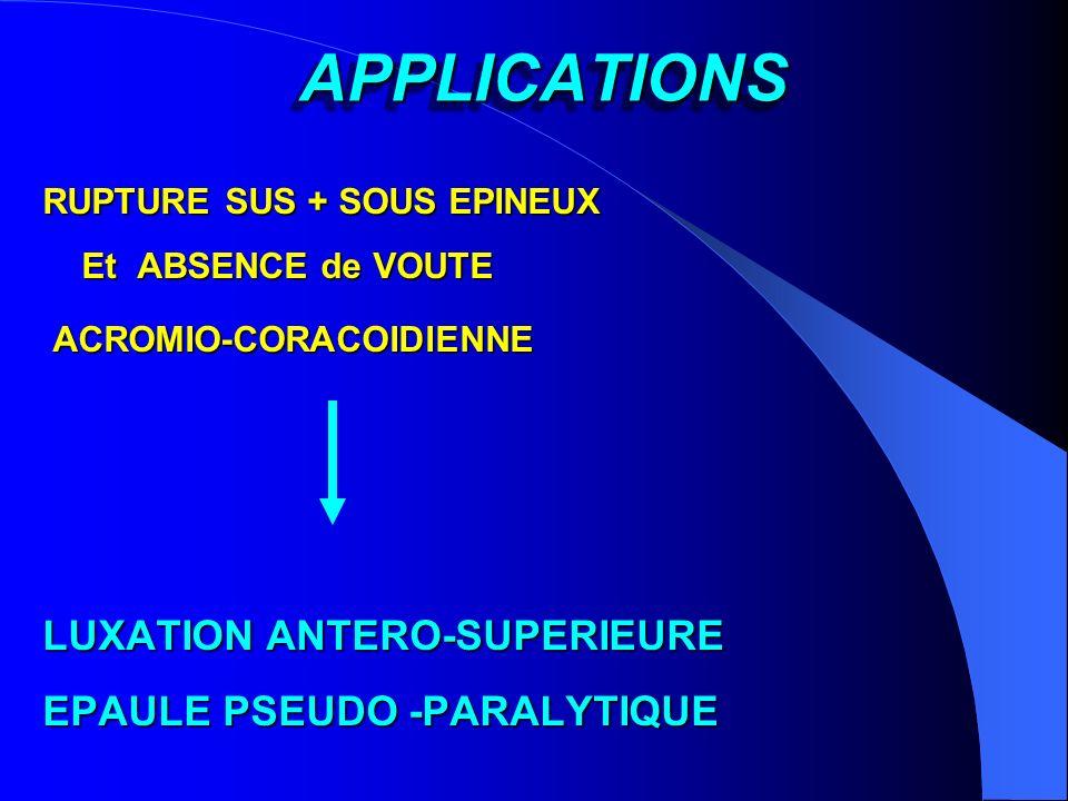 APPLICATIONS APPLICATIONS RUPTURE SUS + SOUS EPINEUX Et ABSENCE de VOUTE Et ABSENCE de VOUTE ACROMIO-CORACOIDIENNE ACROMIO-CORACOIDIENNE LUXATION ANTE