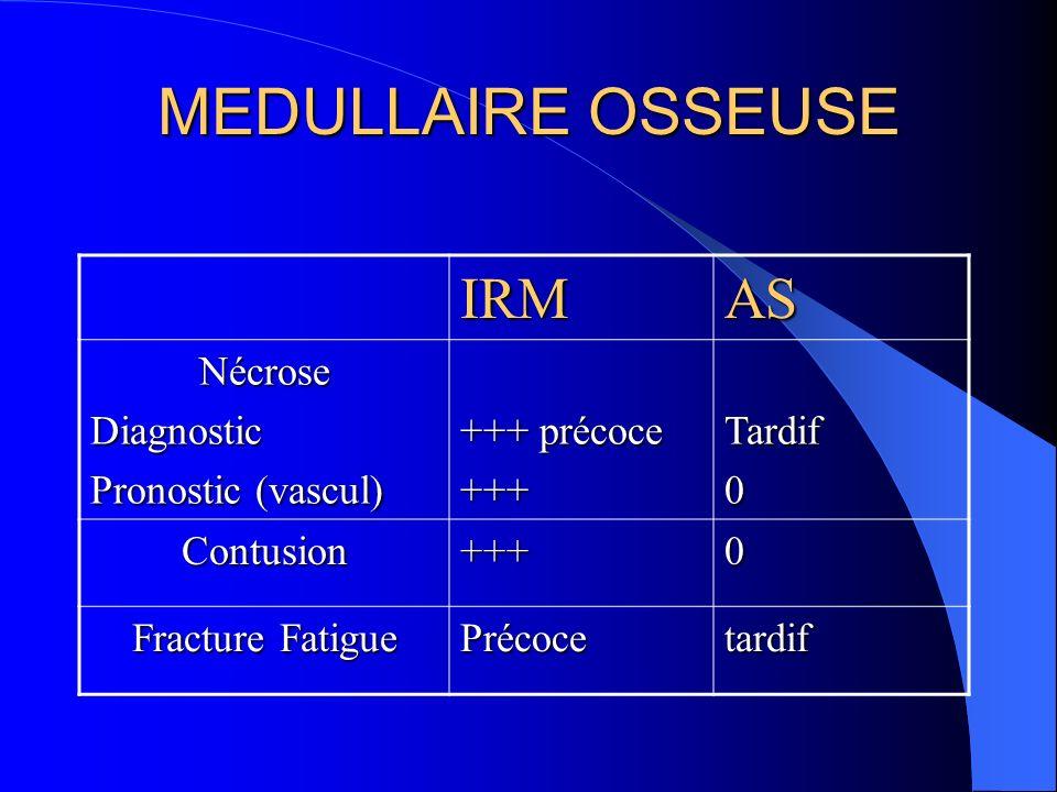 MEDULLAIRE OSSEUSE IRMAS NécroseDiagnostic Pronostic (vascul) +++ précoce +++Tardif0 Contusion+++0 Fracture Fatigue Précocetardif