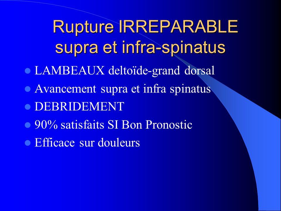 Rupture IRREPARABLE supra et infra-spinatus Rupture IRREPARABLE supra et infra-spinatus LAMBEAUX deltoïde-grand dorsal Avancement supra et infra spina