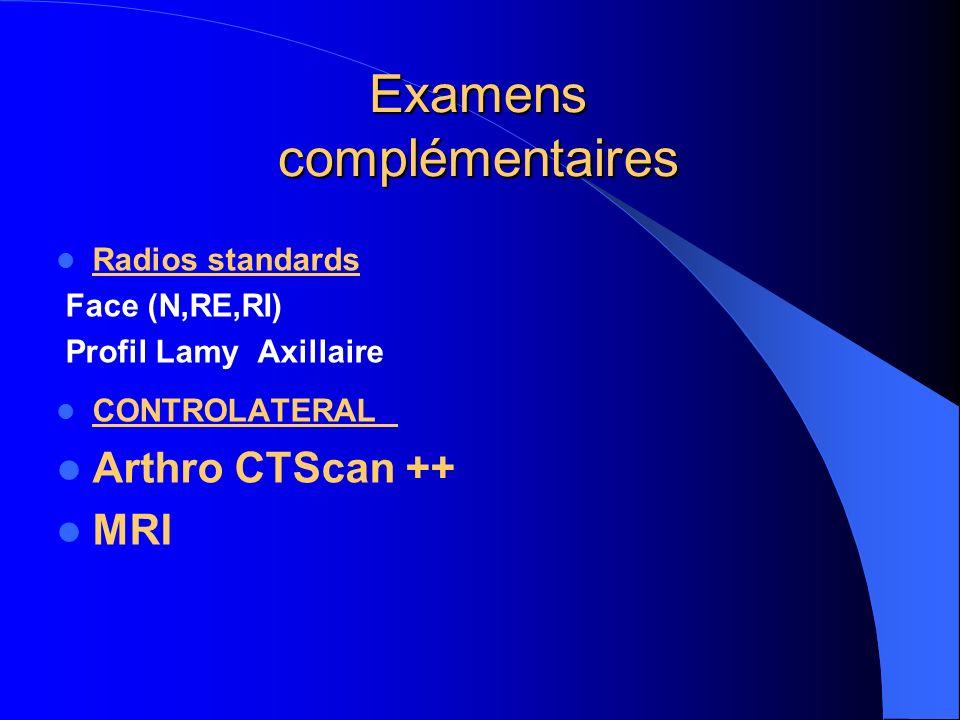 Examens complémentaires Radios standards Face (N,RE,RI) Profil Lamy Axillaire CONTROLATERAL Arthro CTScan ++ MRI