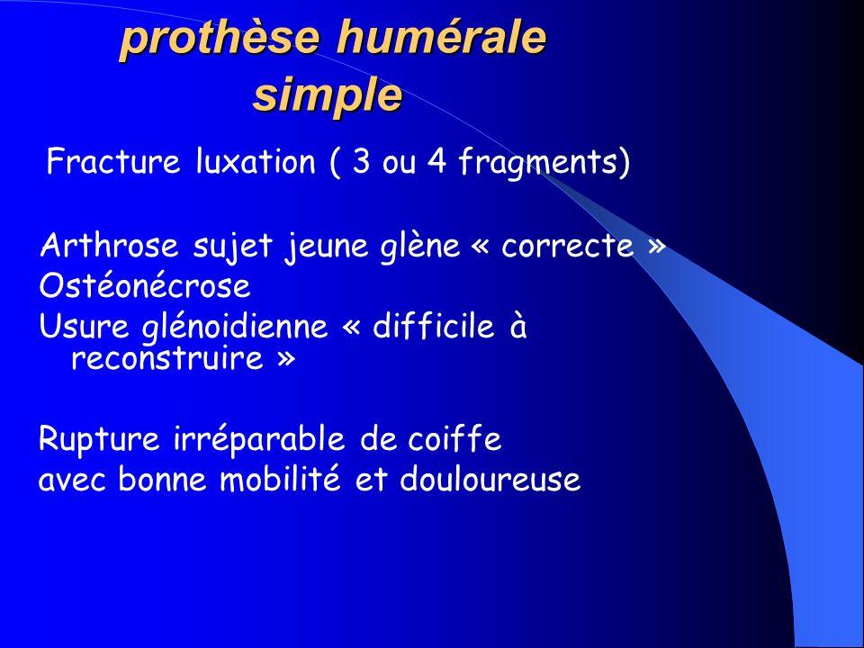 prothèse humérale simple prothèse humérale simple Fracture luxation ( 3 ou 4 fragments) Arthrose sujet jeune glène « correcte » Ostéonécrose Usure glé