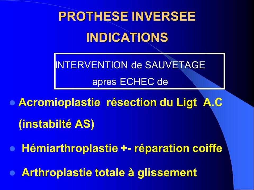PROTHESE INVERSEE INDICATIONS INTERVENTION de SAUVETAGE apres ECHEC de Acromioplastie résection du Ligt A.C (instabilté AS) Hémiarthroplastie +- répar