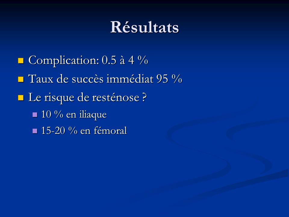 Résultats Complication: 0.5 à 4 % Complication: 0.5 à 4 % Taux de succès immédiat 95 % Taux de succès immédiat 95 % Le risque de resténose ? Le risque