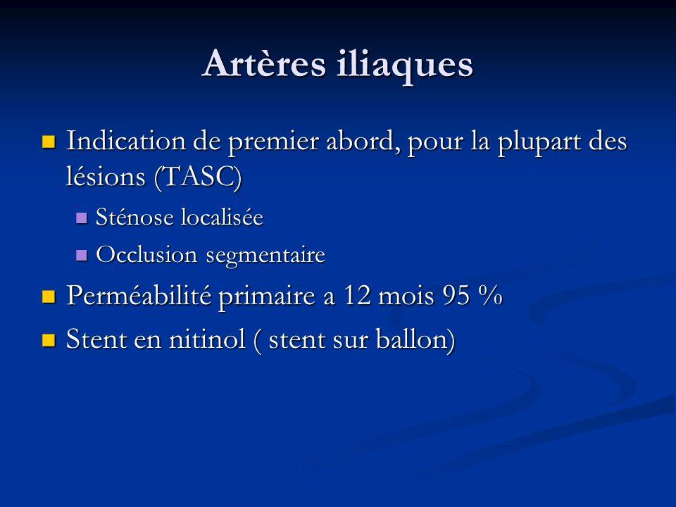 Artères iliaques Indication de premier abord, pour la plupart des lésions (TASC) Indication de premier abord, pour la plupart des lésions (TASC) Sténo