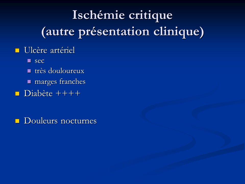 Ischémie critique (autre présentation clinique) Ulcère artériel Ulcère artériel sec sec très douloureux très douloureux marges franches marges franche