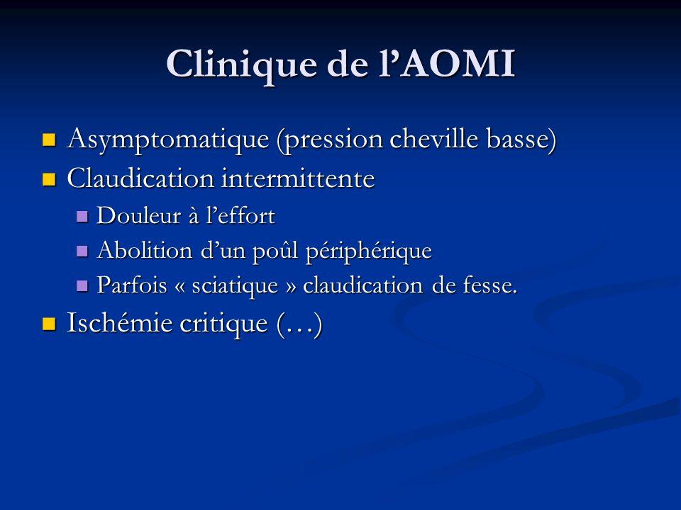 Clinique de lAOMI Asymptomatique (pression cheville basse) Asymptomatique (pression cheville basse) Claudication intermittente Claudication intermitte