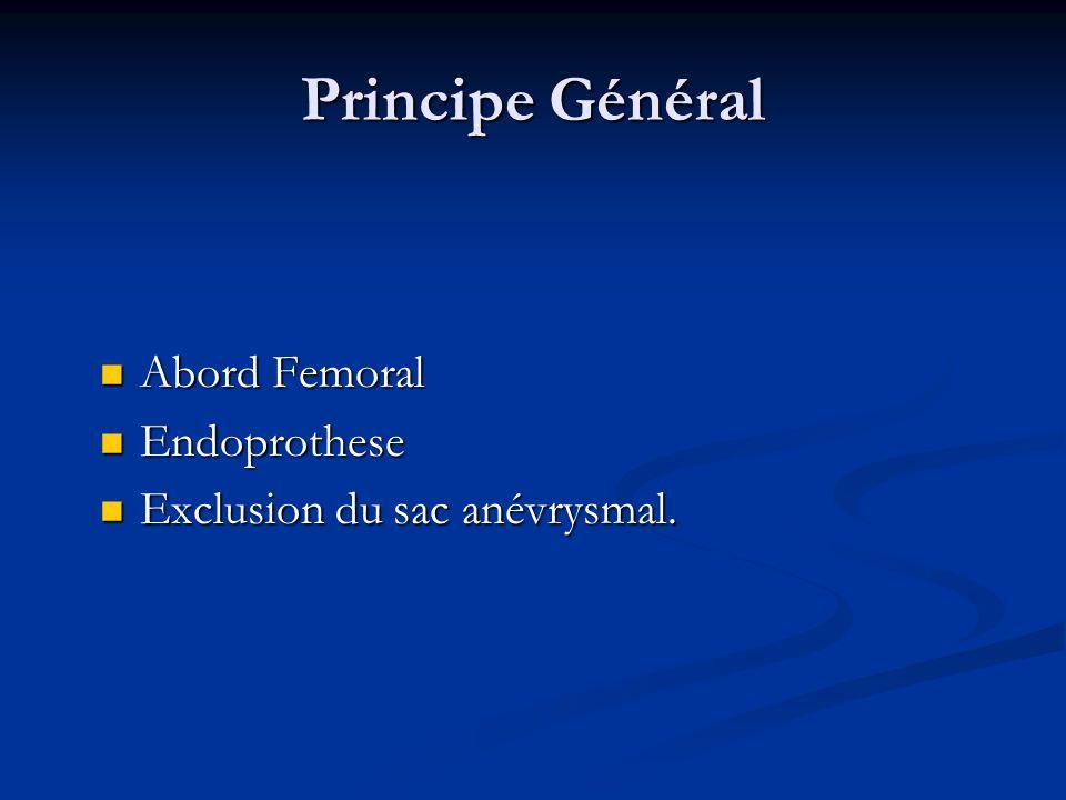 Principe Général Abord Femoral Abord Femoral Endoprothese Endoprothese Exclusion du sac anévrysmal. Exclusion du sac anévrysmal.