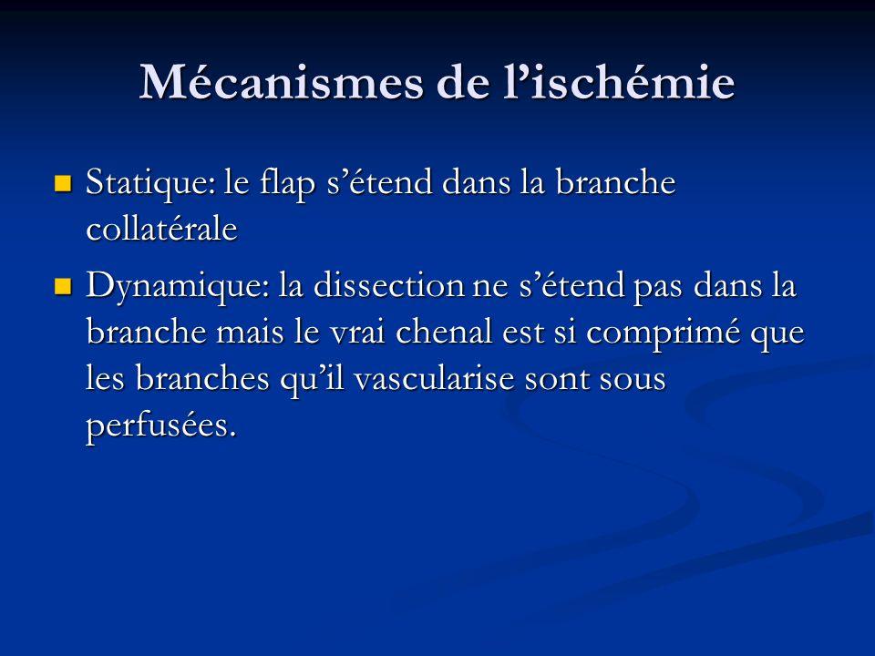 Mécanismes de lischémie Statique: le flap sétend dans la branche collatérale Statique: le flap sétend dans la branche collatérale Dynamique: la dissec