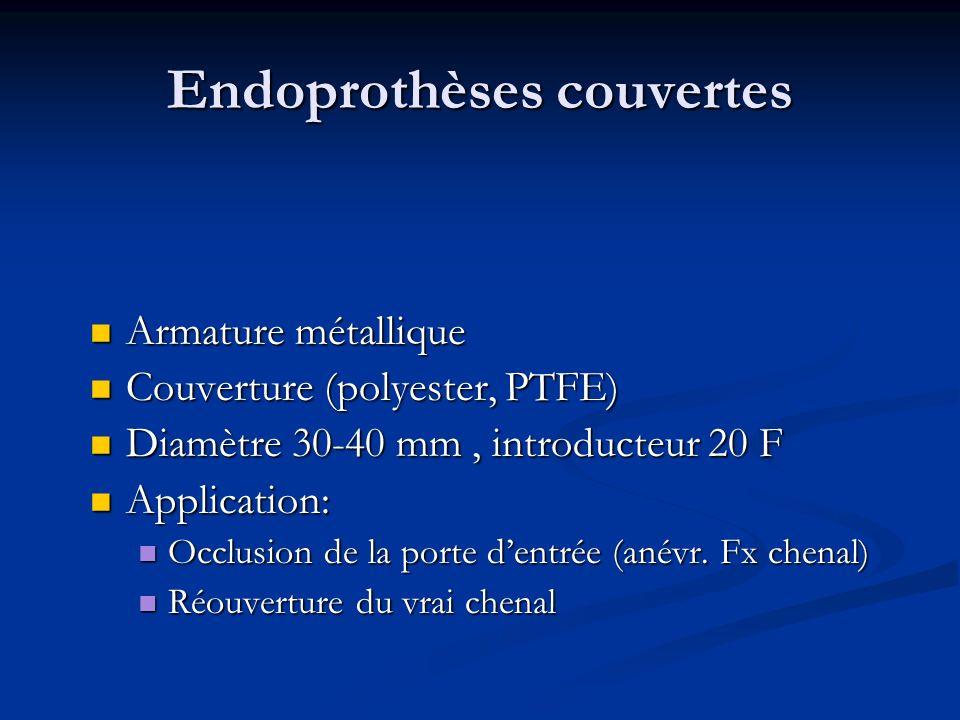 Endoprothèses couvertes Armature métallique Armature métallique Couverture (polyester, PTFE) Couverture (polyester, PTFE) Diamètre 30-40 mm, introduct