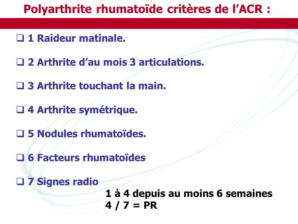 Polyarthrite rhumatoïde critères de lACR : 1 Raideur matinale. 2 Arthrite dau mois 3 articulations. 3 Arthrite touchant la main. 4 Arthrite symétrique