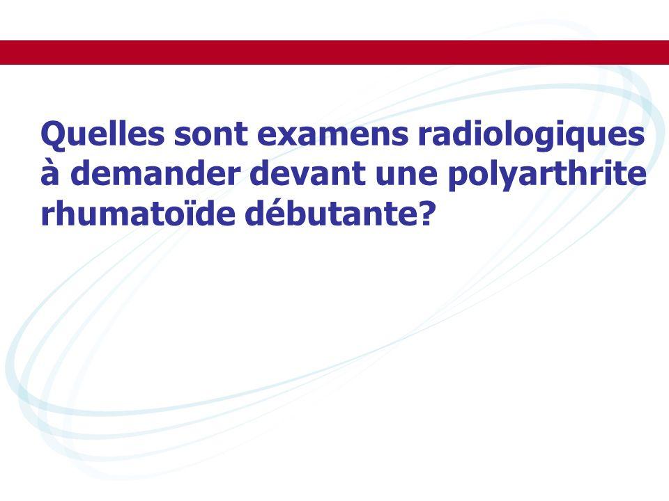 Quelles sont examens radiologiques à demander devant une polyarthrite rhumatoïde débutante?