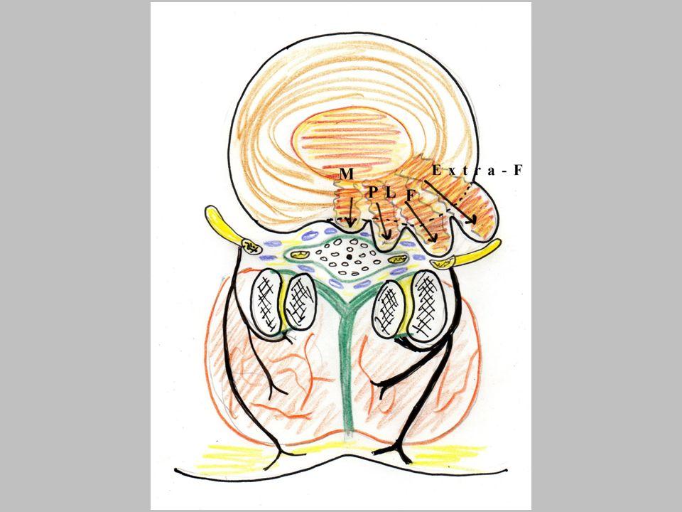 La cause de la douleur dans une radiculalgie d origine discale: 2-la part inflammatoire Le tissu discal hernié entraine la libération de substances algogènes (cytokines) Néoangiogénése: résorbsion de la HD (prise de contraste en imagerie) inj.