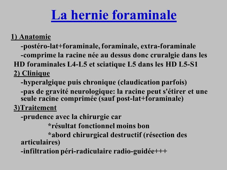 La hernie foraminale 1) Anatomie -postéro-lat+foraminale, foraminale, extra-foraminale -comprime la racine née au dessus donc cruralgie dans les HD fo