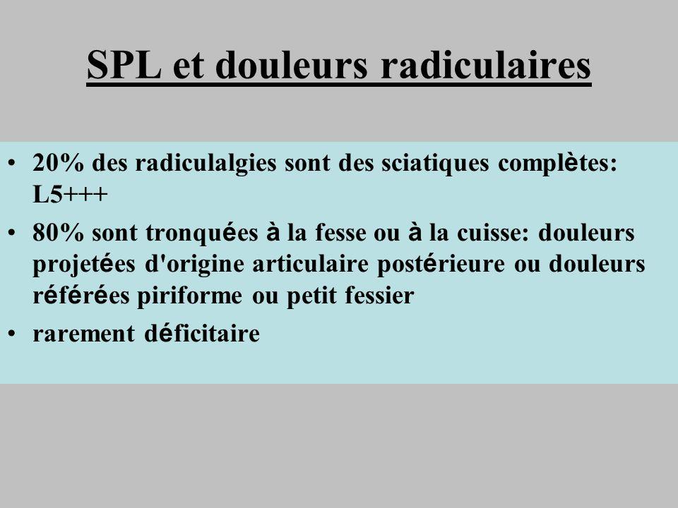 SPL et douleurs radiculaires 20% des radiculalgies sont des sciatiques compl è tes: L5+++ 80% sont tronqu é es à la fesse ou à la cuisse: douleurs pro