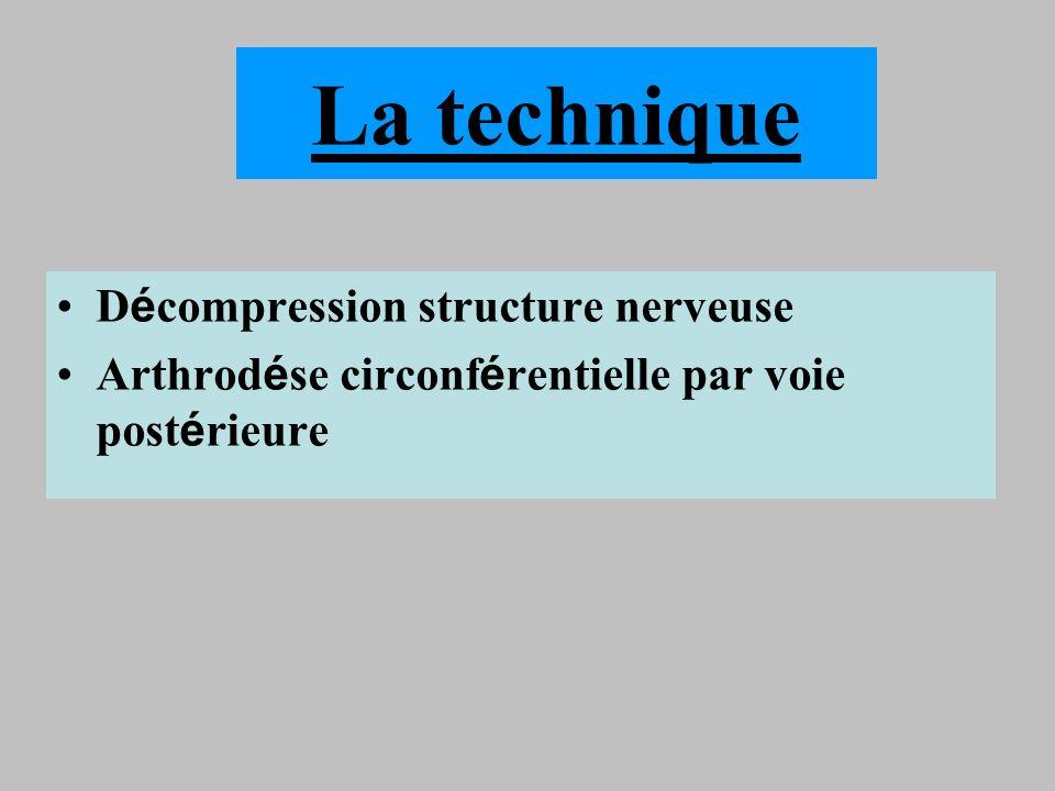 La technique D é compression structure nerveuse Arthrod é se circonf é rentielle par voie post é rieure
