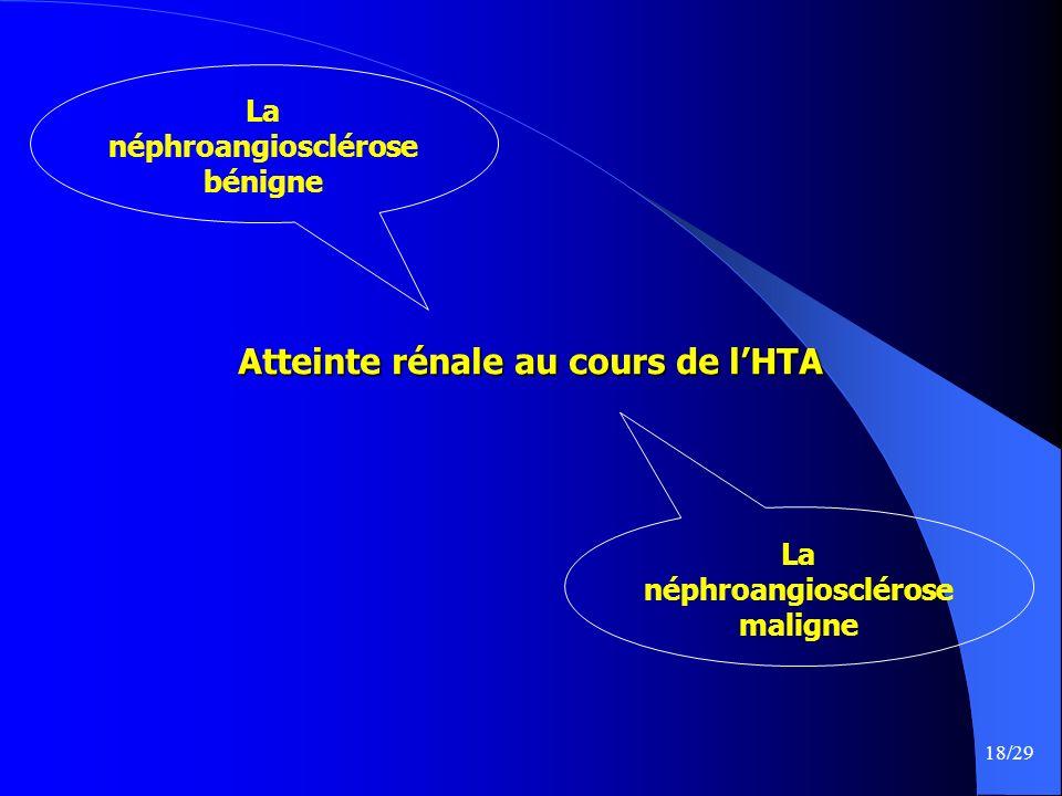 18/29 Atteinte rénale au cours de lHTA La néphroangiosclérose maligne La néphroangiosclérose bénigne