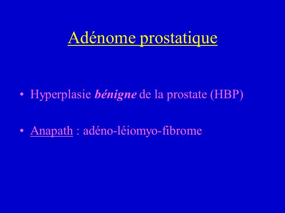 Adénome prostatique Hyperplasie bénigne de la prostate (HBP) Anapath : adéno-léiomyo-fibrome