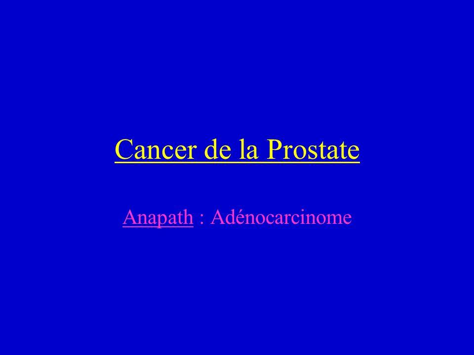 Cancer de la Prostate Anapath : Adénocarcinome