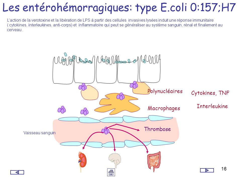 16 Polynucléaires Macrophages Vaisseau sanguin Les entérohémorragiques: type E.coli 0:157;H7 Laction de la verotoxine et la libération de LPS à partir