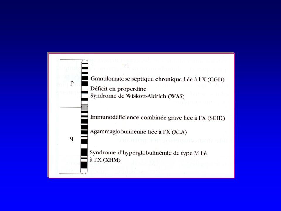 Syndrome Hyper IgMSyndrome Hyper IgM Asymptomatique jusquà 1 ou 2 ans, puis infections Asymptomatique jusquà 1 ou 2 ans, puis infections Augmentation