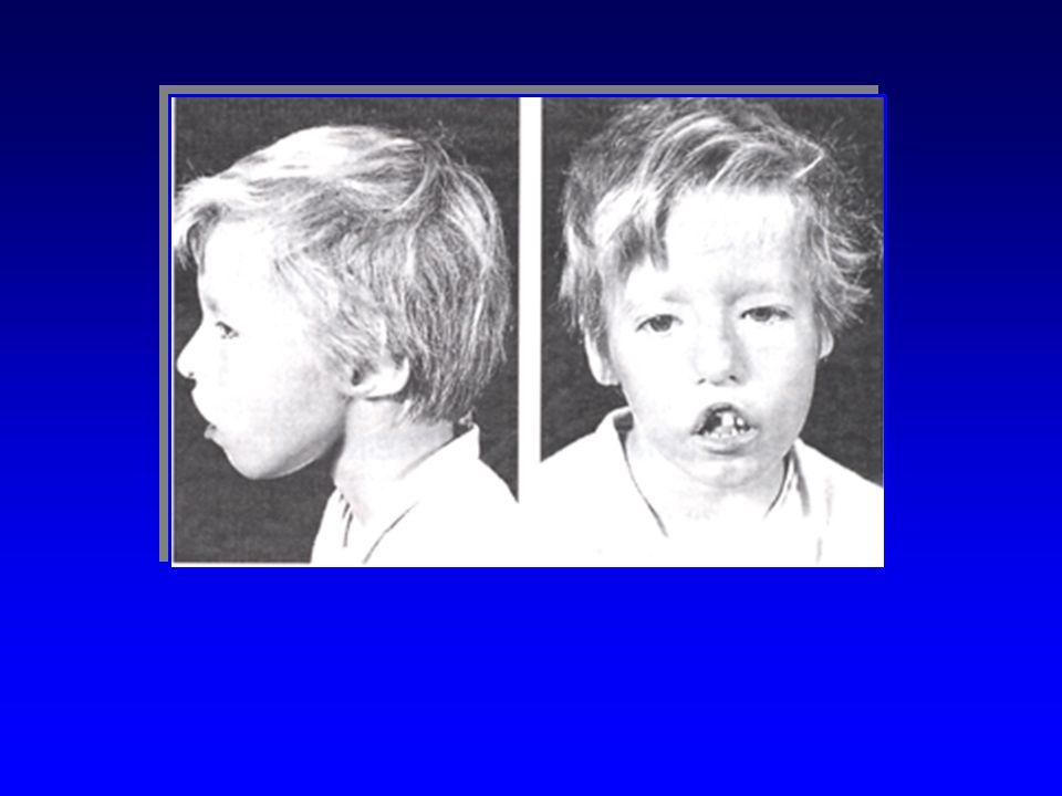 DI GEORGEDI GEORGE Embryopathie Embryopathie Absence de para thyroïde et dépithélium thymique Absence de para thyroïde et dépithélium thymique Beaucou