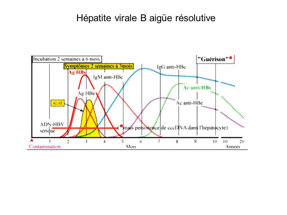 Infection Chronique par VHB