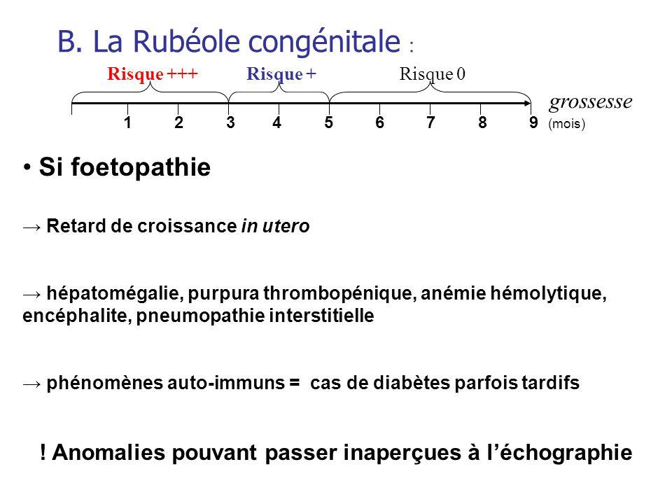 grossesse Risque +++Risque +Risque 0 1 2 3 4 5 6 7 8 9 (mois) B. La Rubéole congénitale : Si foetopathie Retard de croissance in utero hépatomégalie,