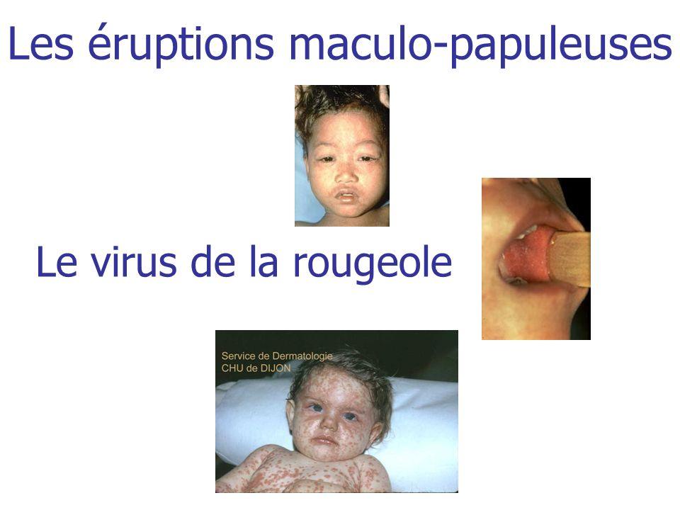 Famille des paramyxoviridae (VRS, parainfluenzae, oreillons) Genre MorbillivirusARNEnveloppe Glycoprotéine H (dattachement) et F (de fusion) 1.