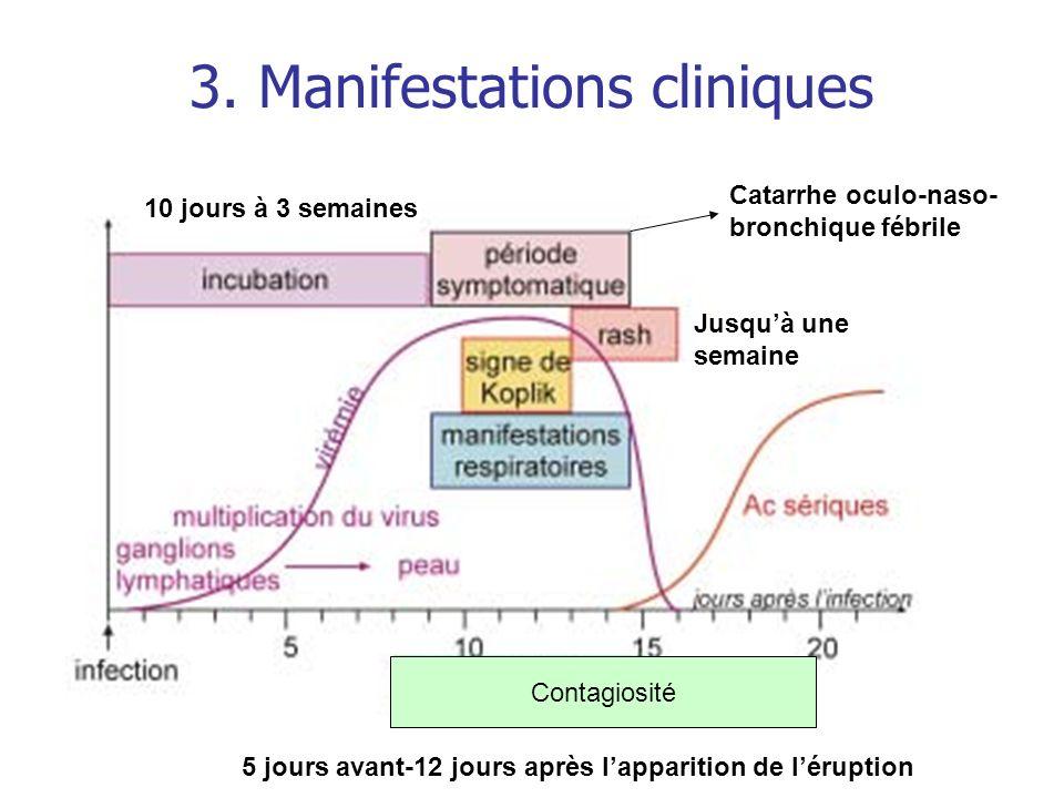 Les éruptions maculo-papuleuses Exanthème subit ou 6ème maladie (roséole infantile) *Virus responsable :HHV-6