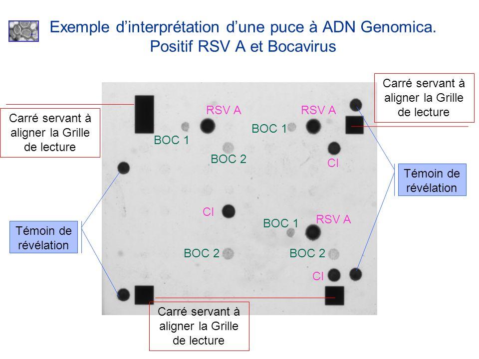 Exemple dinterprétation dune puce à ADN Genomica. Positif RSV A et Bocavirus Carré servant à aligner la Grille de lecture Témoin de révélation CI RSV