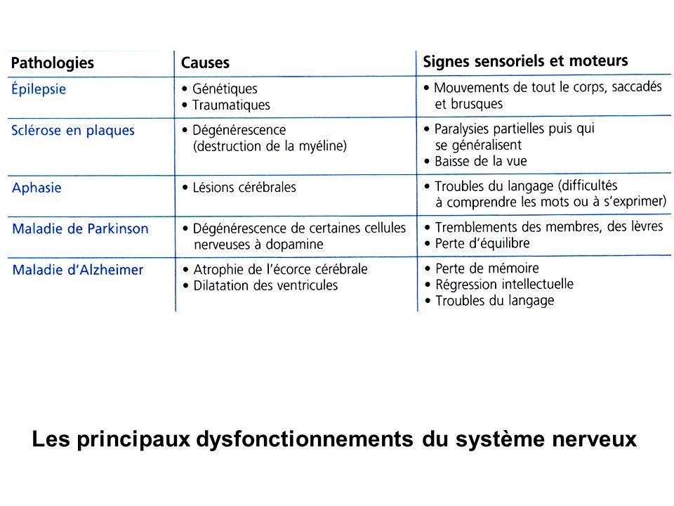 Les principaux dysfonctionnements du système nerveux