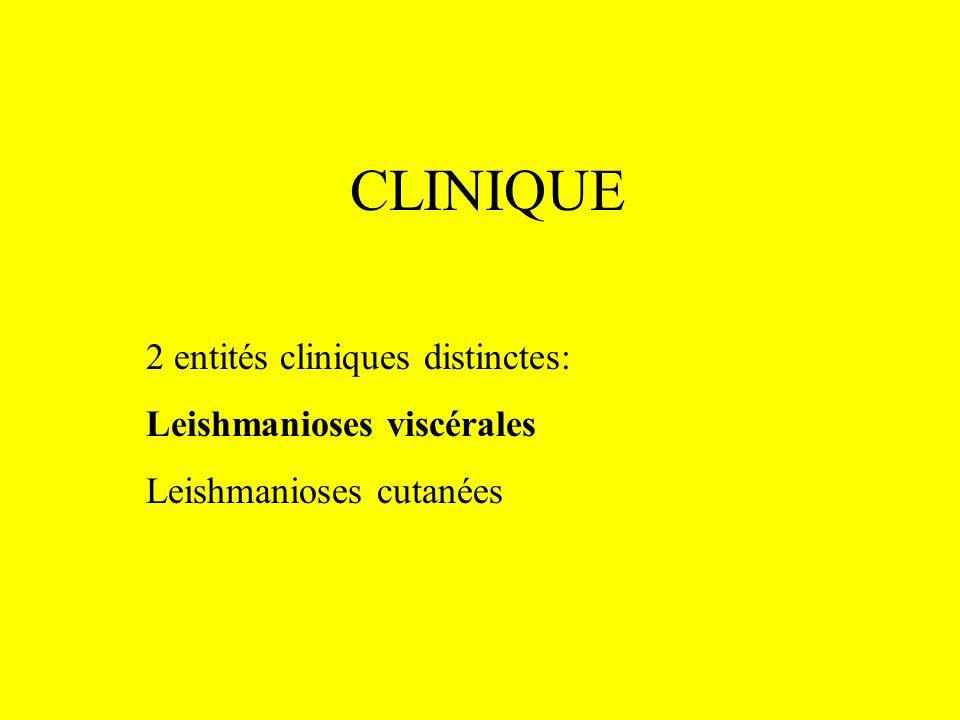 CLINIQUE 2 entités cliniques distinctes: Leishmanioses viscérales Leishmanioses cutanées