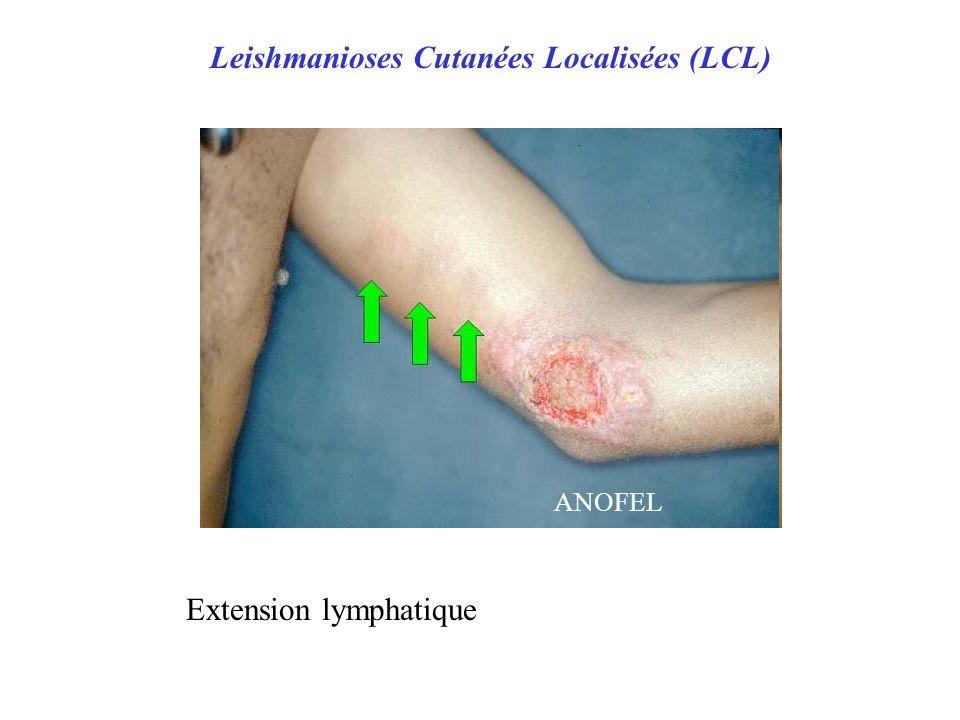 Leishmanioses Cutanées Localisées (LCL) ANOFEL Extension lymphatique