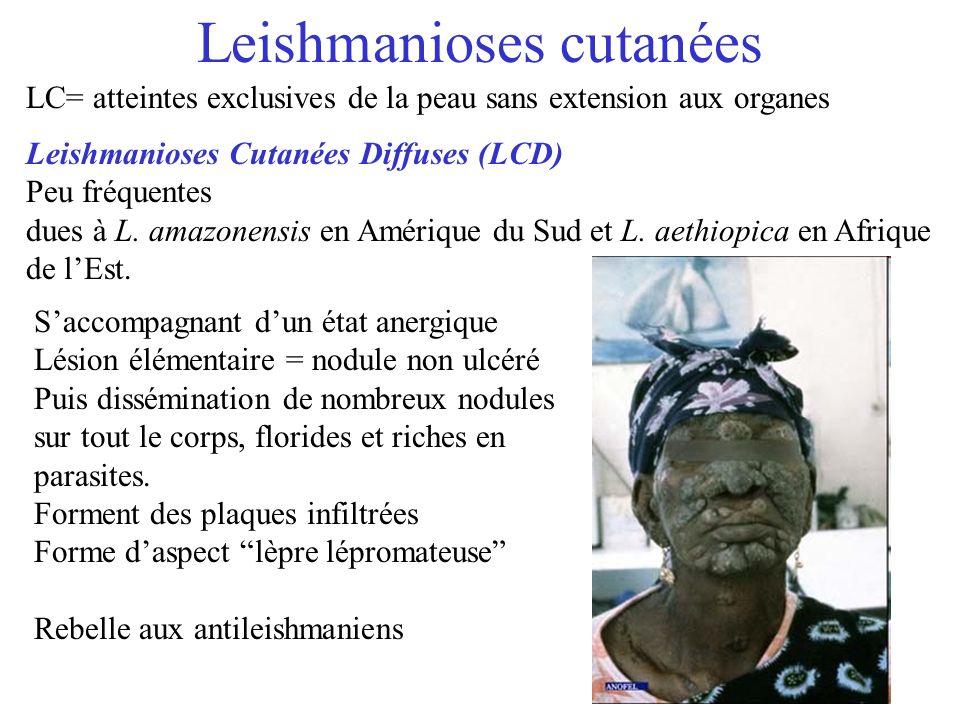 Leishmanioses cutanées Leishmanioses Cutanées Diffuses (LCD) Peu fréquentes dues à L. amazonensis en Amérique du Sud et L. aethiopica en Afrique de lE