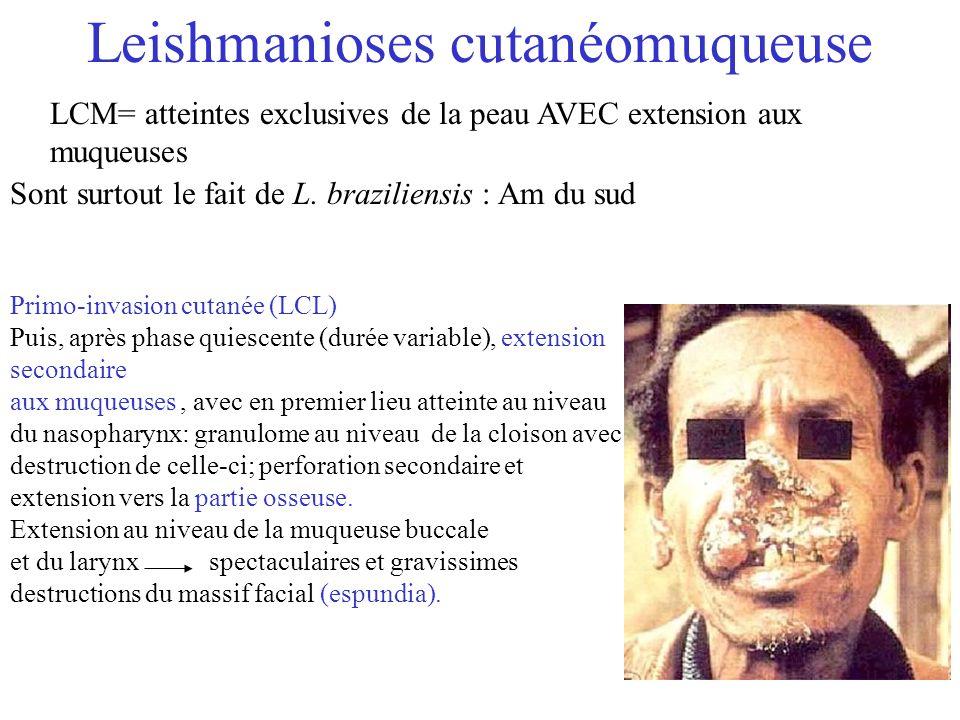 Leishmanioses cutanéomuqueuse LCM= atteintes exclusives de la peau AVEC extension aux muqueuses Sont surtout le fait de L. braziliensis : Am du sud Pr
