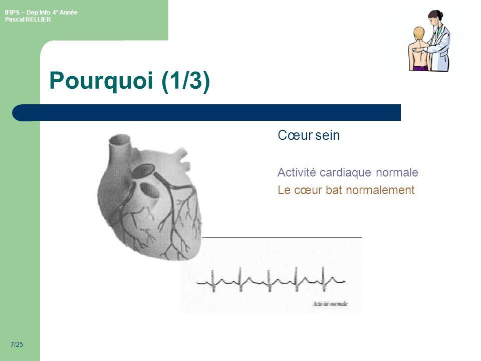 IFIPS – Dep Info 4° Année Pascal RELLIER 7/25 Pourquoi (1/3) Cœur sein Activité cardiaque normale Le cœur bat normalement