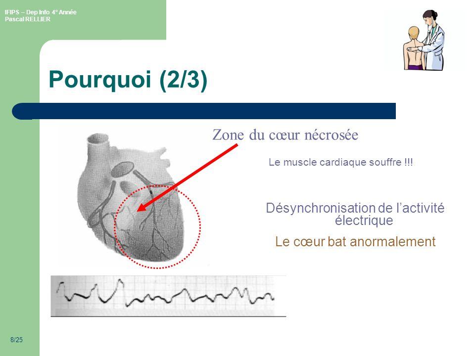 IFIPS – Dep Info 4° Année Pascal RELLIER 8/25 Pourquoi (2/3) Le muscle cardiaque souffre !!.