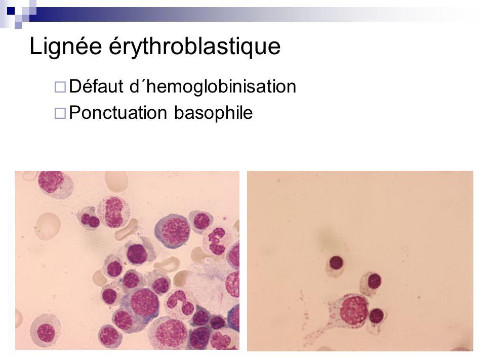Lignée érythroblastique Défaut d´hemoglobinisation Ponctuation basophile